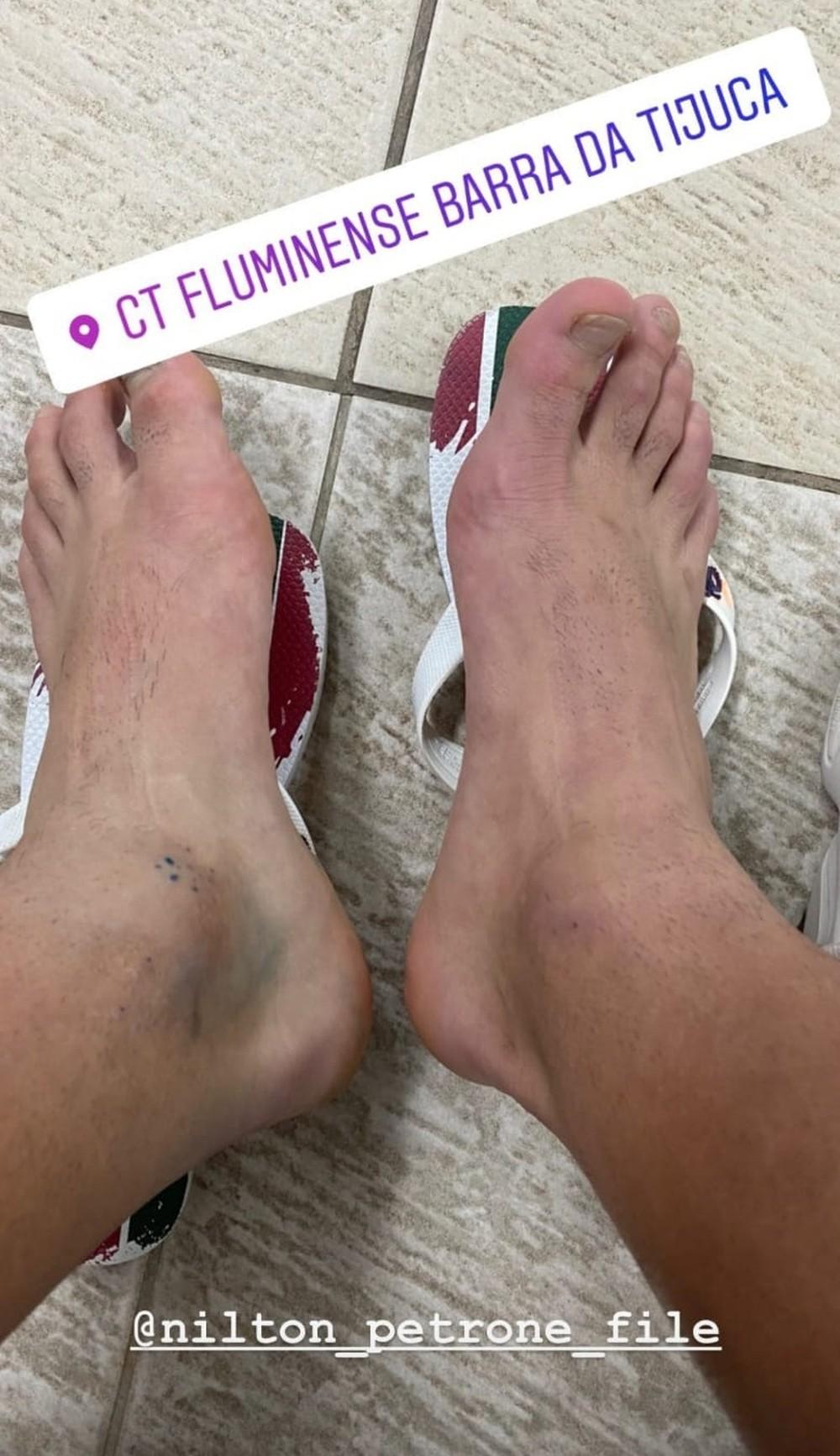 yago felipe postou foto dos pés sendo o tornozelo esquerdo