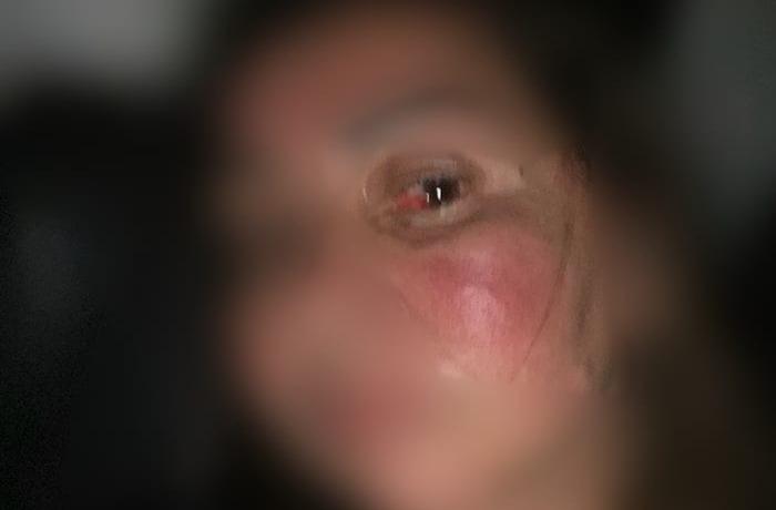 Servidora do Degase é agredida por interna