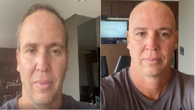 Caio Ribeiro antes e depois de raspar a cabeça durante tratamento contra o câncer