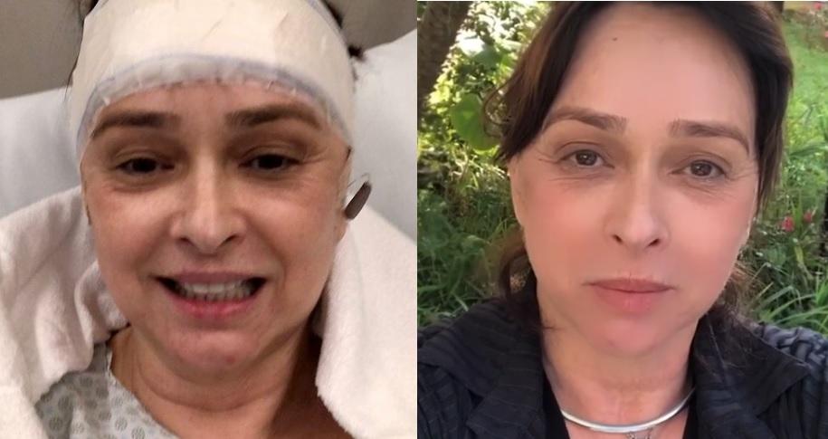 Myriam Rios no hospital depois de cirurgia na cabeça