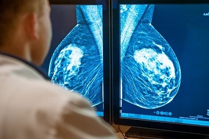 Exame de mamografia
