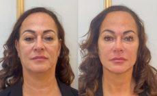 Mãe de Neymar faz harmonização facial. Veja o resultado!