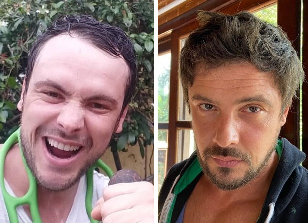 Sérgio Guizé antes e depois do transplante capilar