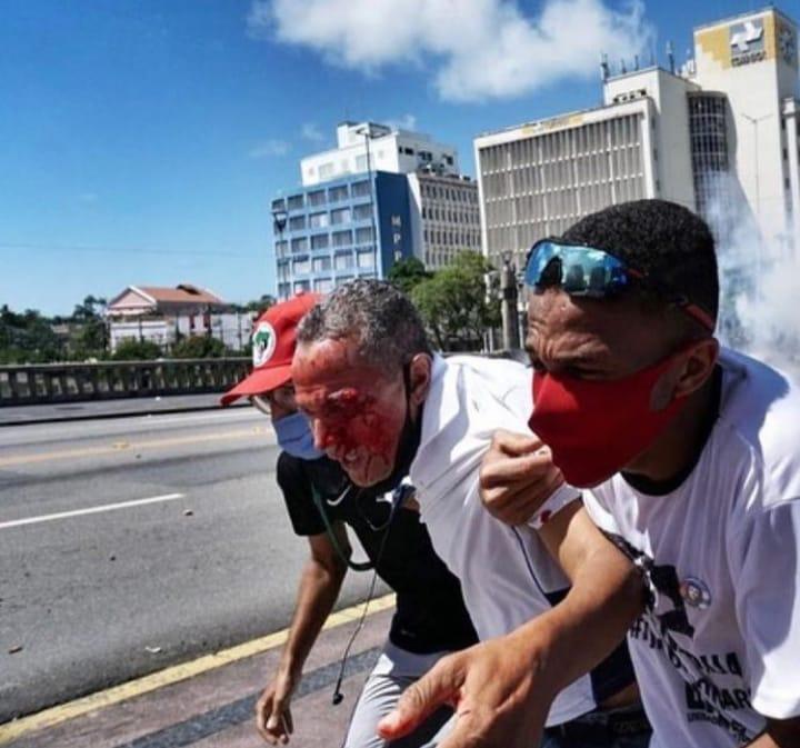 Homem é retirado de manifestação em Recife após ser atingido por bala de Borracha