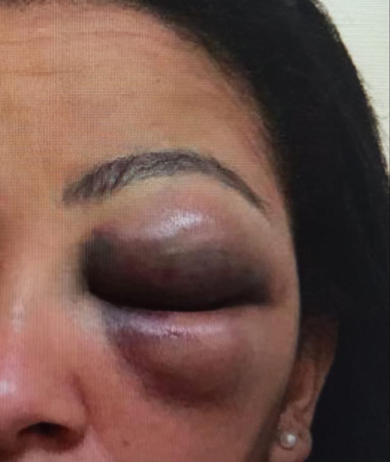 Na imagem, Mulher machucada por lutador em Niterói