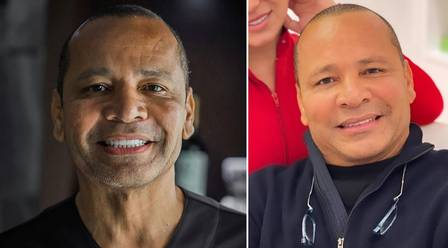 Neymar Pai antes e depois dos procedimentos estéticos no rosto