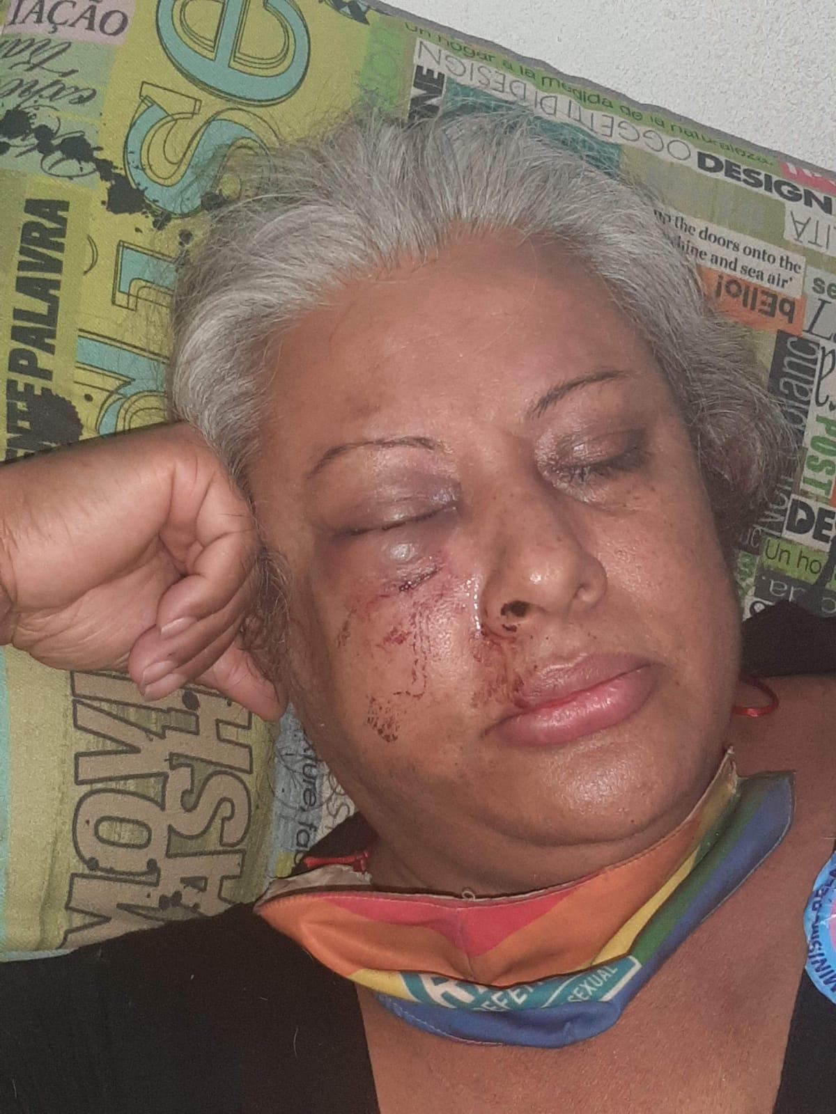Rosto de Indianarae Siqueira após as agressões