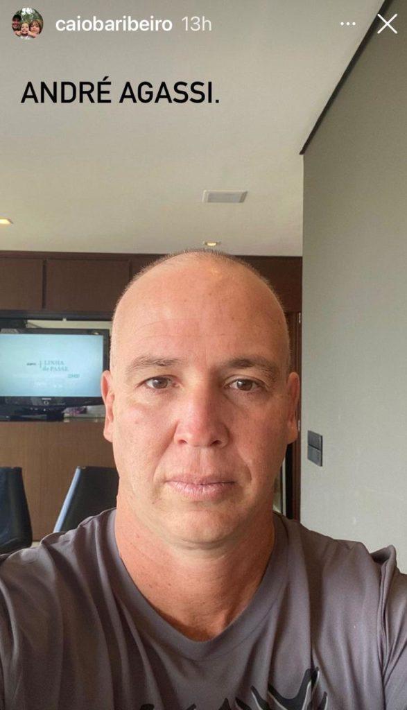 Print da foto do Caio Ribeiro careca durante tratamento contra o câncer