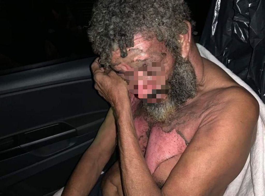 Morador de rua queimado em Nova Iguaçu