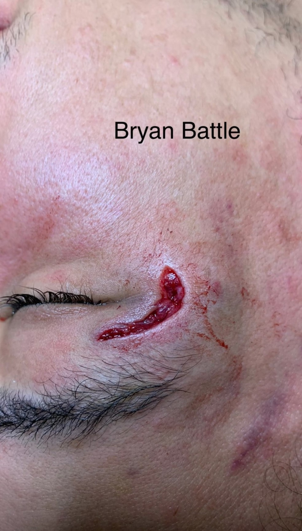 Bryan Battle antes
