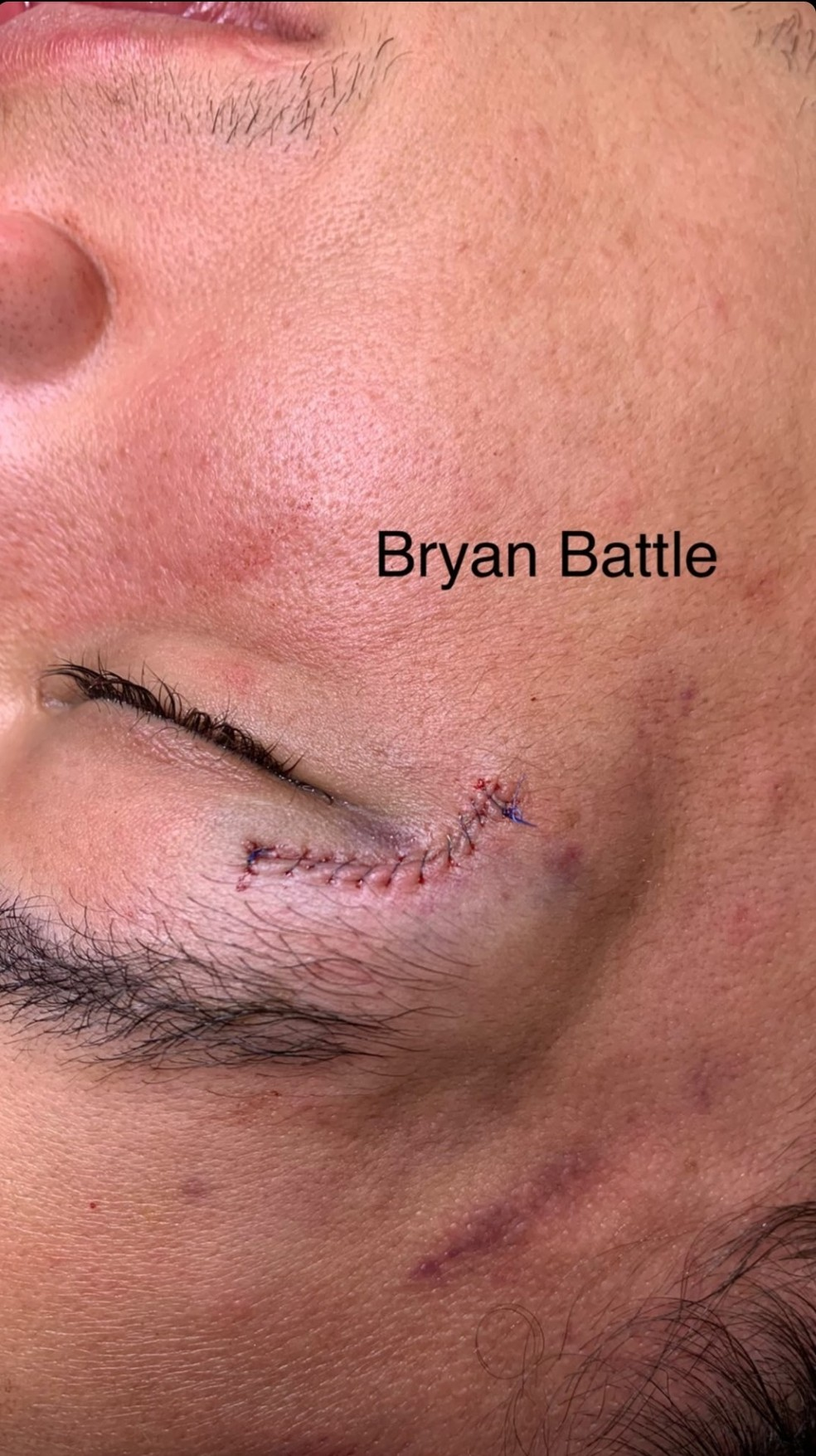 Bryan Battle depois