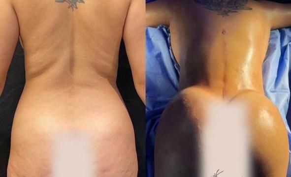 Sarah Andrade passa por procedimentos estéticos em São Paulo