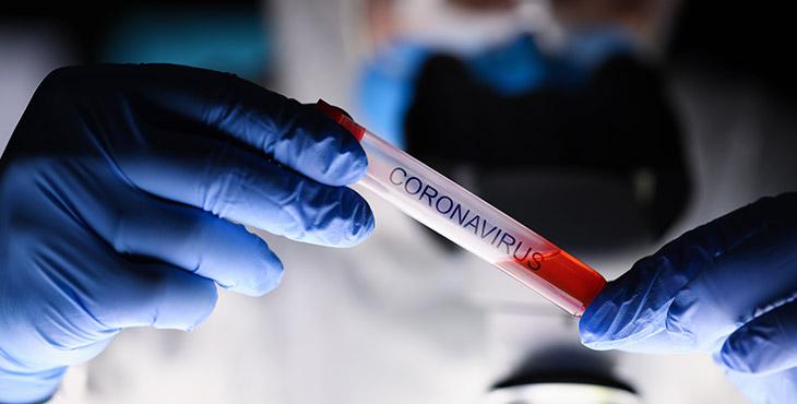 Foto tubo de ensaio clínico