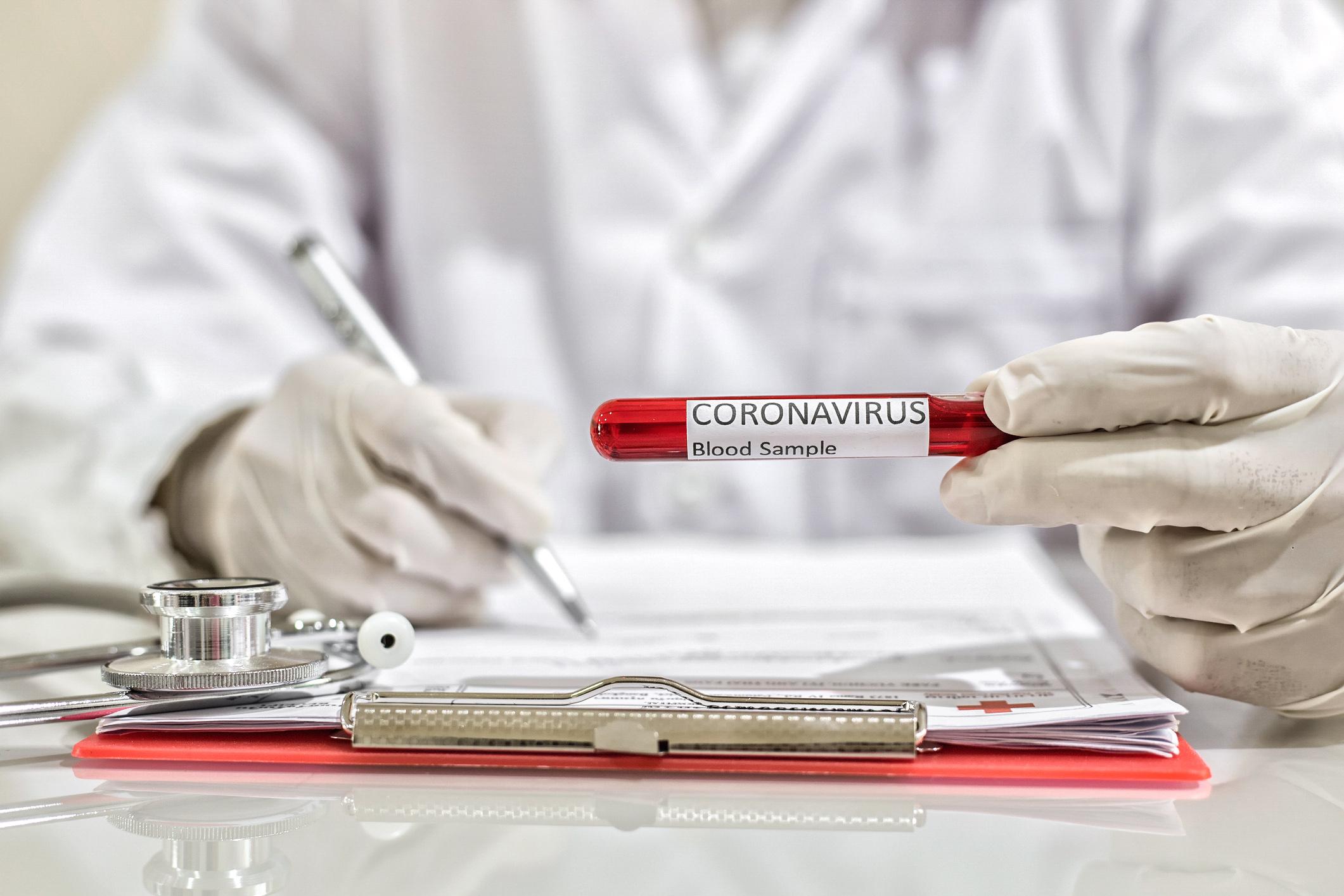 Profissional de saúde preenche ficha e segura tubo de ensaio com exame para detectar Covid-19